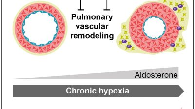 Endothelial cell mineralocorticoid receptors drive pulmonary hypertension and RV failure